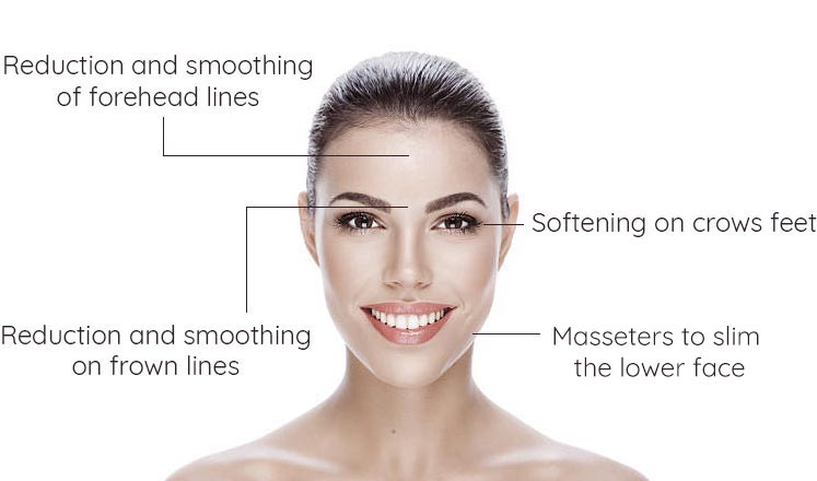 Diagram that explains how anti wrinkle injections work on the face and which areas are best treated